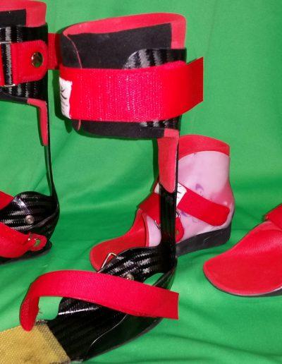 Unterschenkel Carbonorthese mit abnehmbarer Knöchelorthese