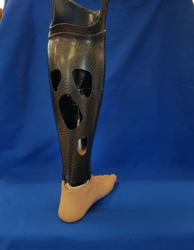Unterschenkelprothese mit aktivem Vacuum-System mit Carbonverkleidung