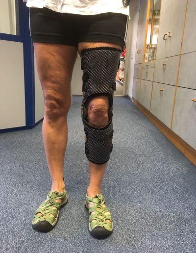 Knieorthese in Carbontechnik