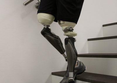 Oberschenkelprothese bilateral beim Treppen gehen